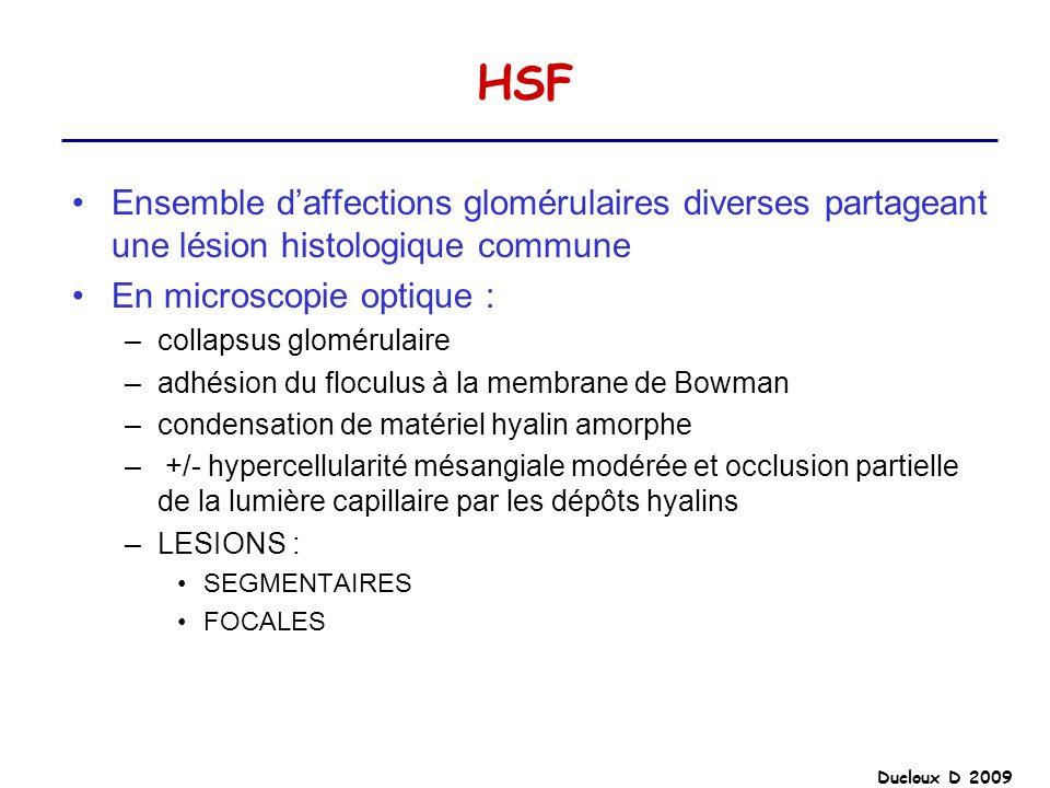 HSFEnsemble d'affections glomérulaires diverses partageant une lésion histologique commune. En microscopie optique :
