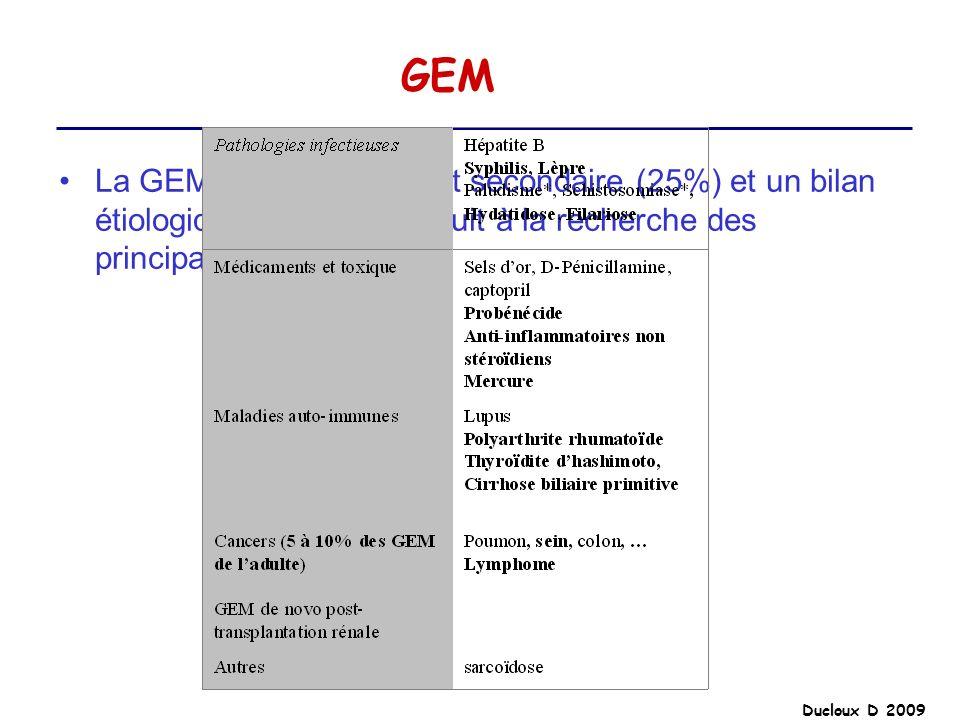 GEM La GEM est fréquemment secondaire (25%) et un bilan étiologique doit être conduit à la recherche des principales étiologies.
