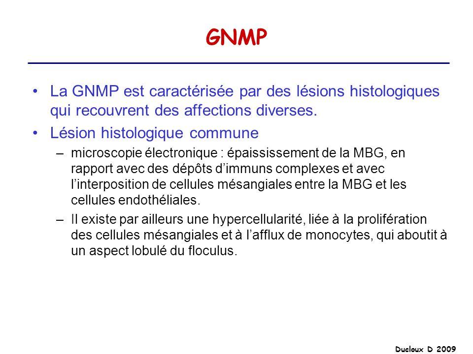 GNMP La GNMP est caractérisée par des lésions histologiques qui recouvrent des affections diverses.