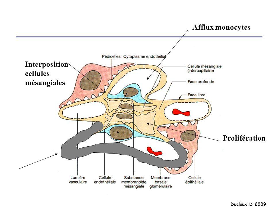 Afflux monocytes Interposition cellules mésangiales Prolifération