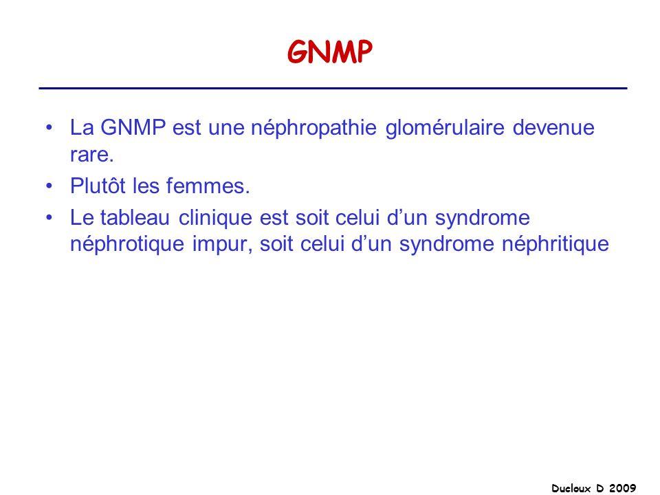 GNMP La GNMP est une néphropathie glomérulaire devenue rare.