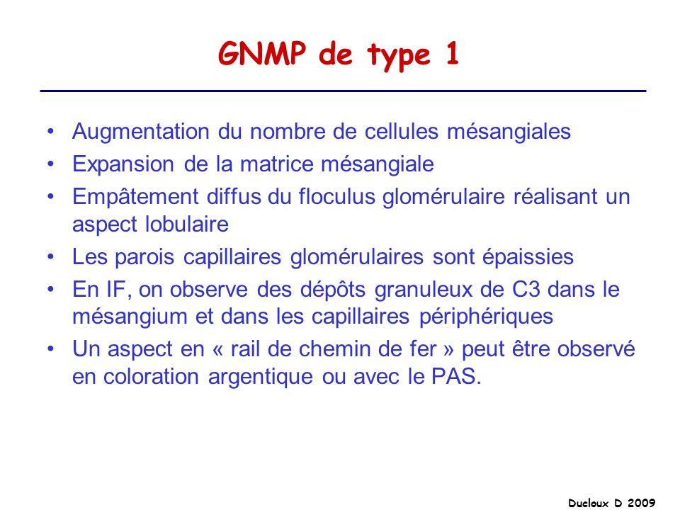 GNMP de type 1 Augmentation du nombre de cellules mésangiales