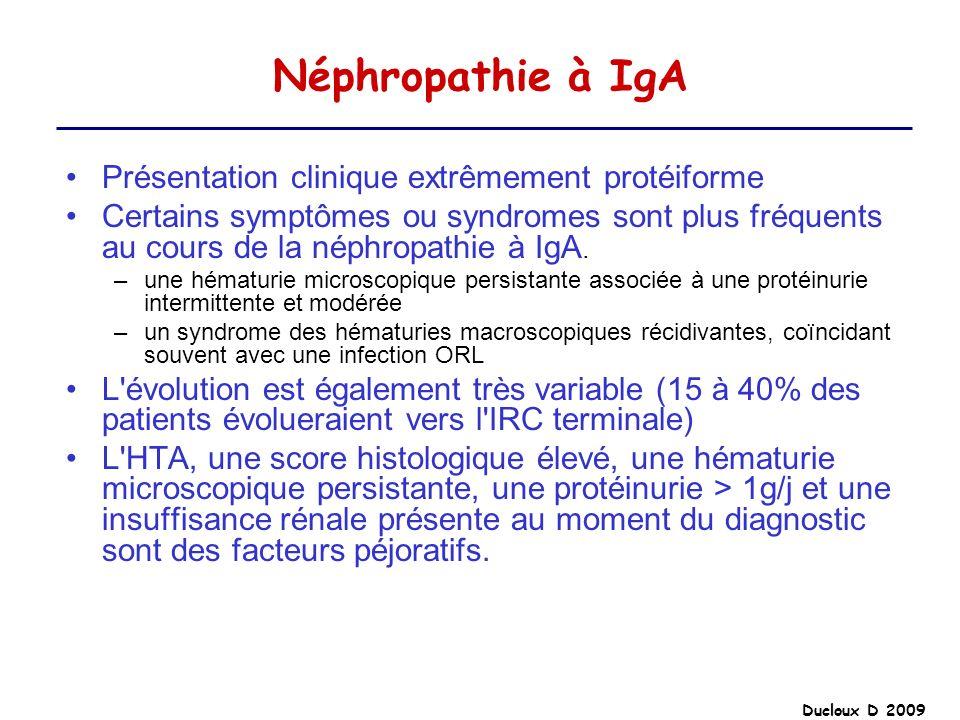 Néphropathie à IgA Présentation clinique extrêmement protéiforme