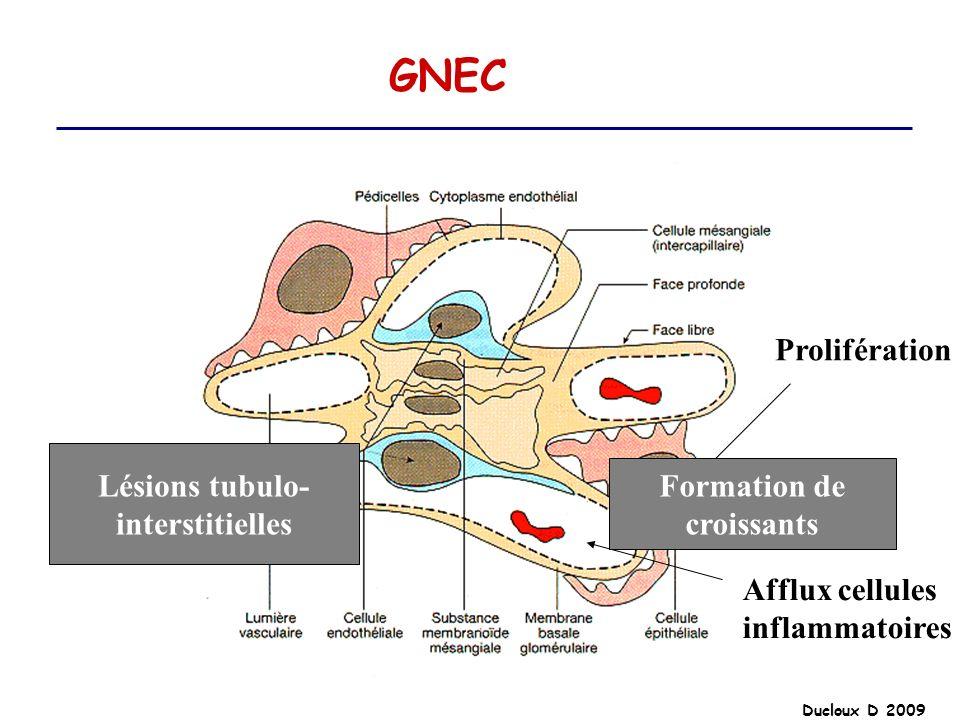 GNEC Prolifération Lésions tubulo- Formation de interstitielles