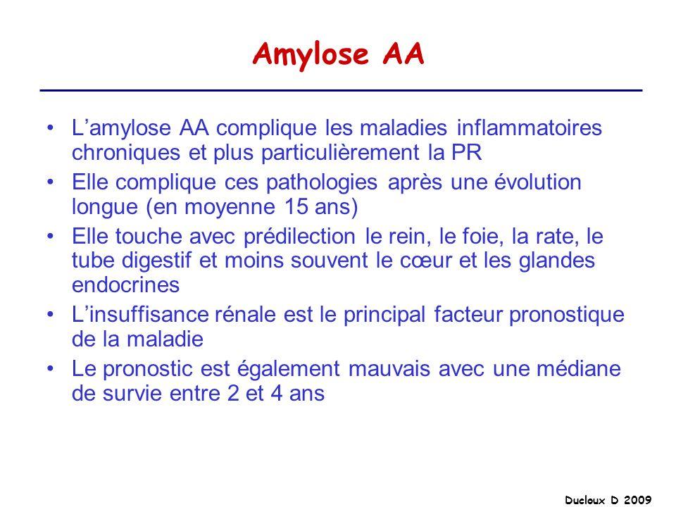 Amylose AA L'amylose AA complique les maladies inflammatoires chroniques et plus particulièrement la PR.