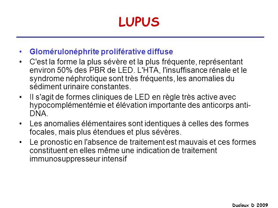 LUPUS Glomérulonéphrite proliférative diffuse