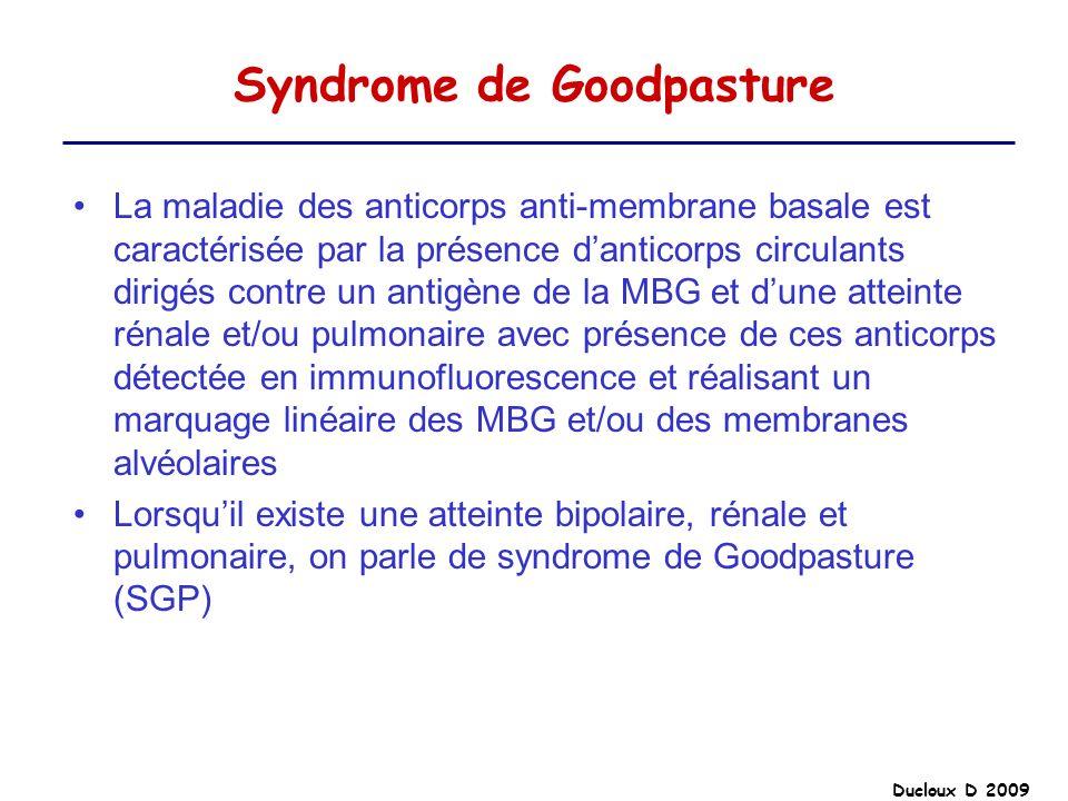 Syndrome de Goodpasture
