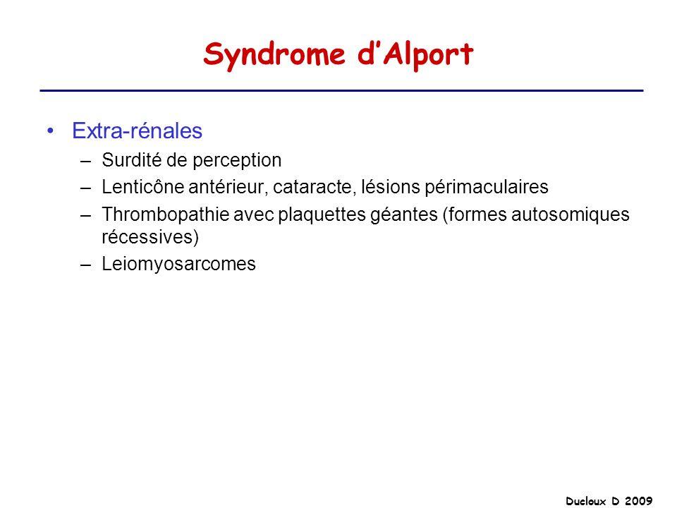 Syndrome d'Alport Extra-rénales Surdité de perception