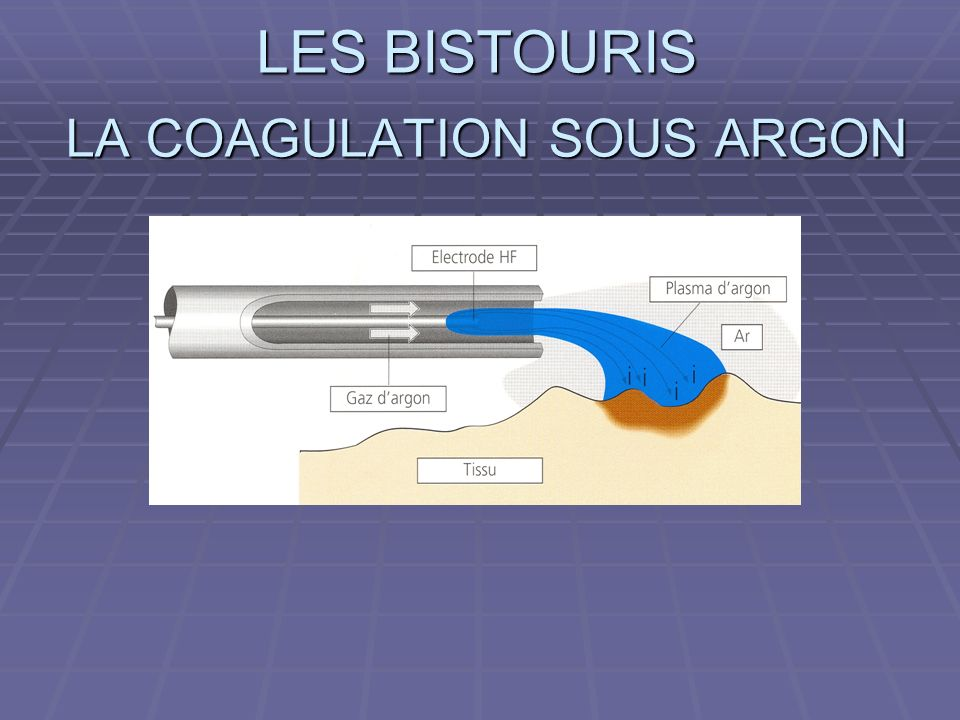 LA COAGULATION SOUS ARGON