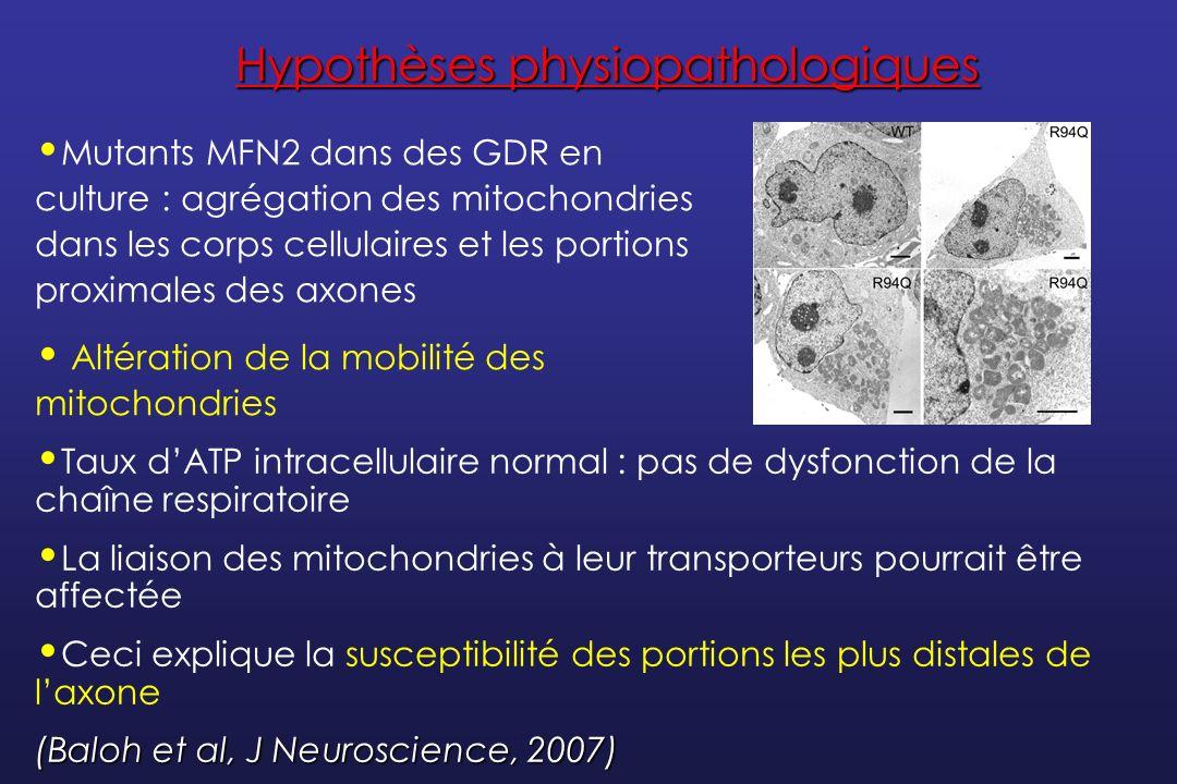 Hypothèses physiopathologiques