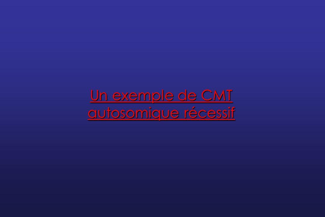 Un exemple de CMT autosomique récessif