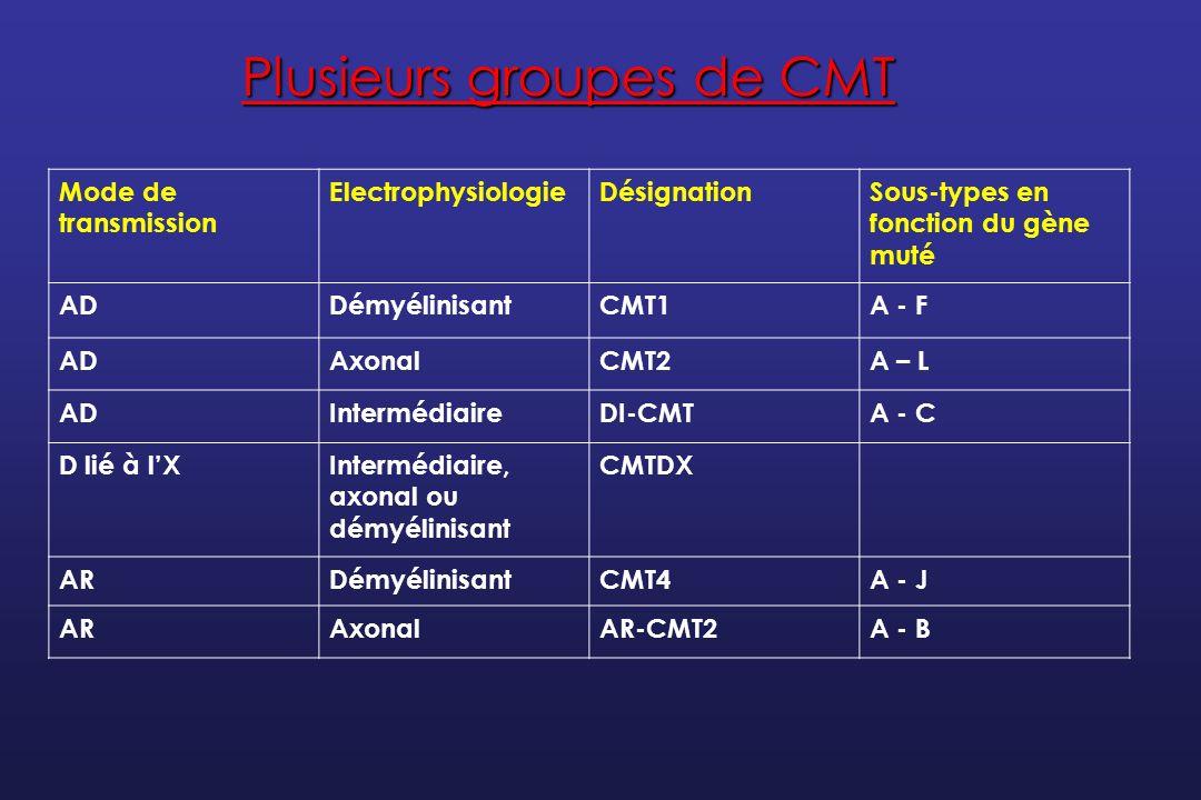 Plusieurs groupes de CMT