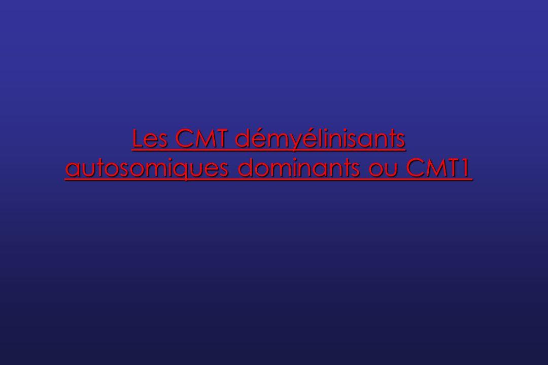 Les CMT démyélinisants autosomiques dominants ou CMT1