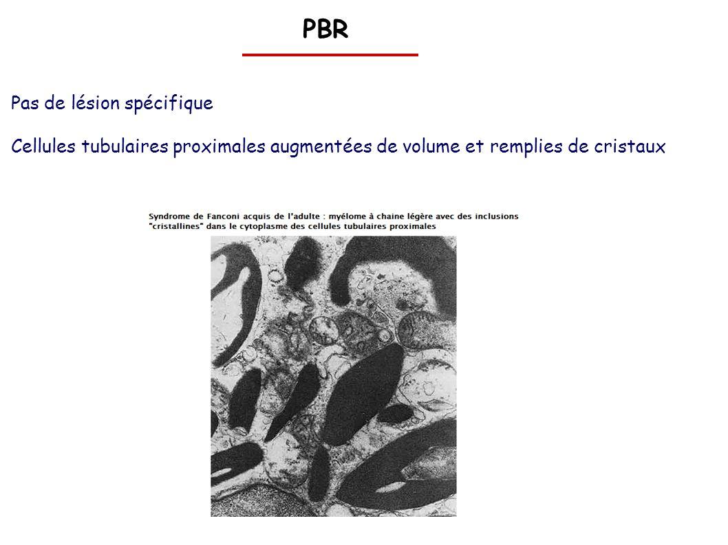 PBR Pas de lésion spécifique