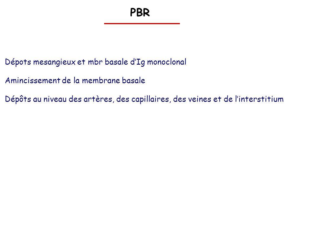 PBR Dépots mesangieux et mbr basale d'Ig monoclonal