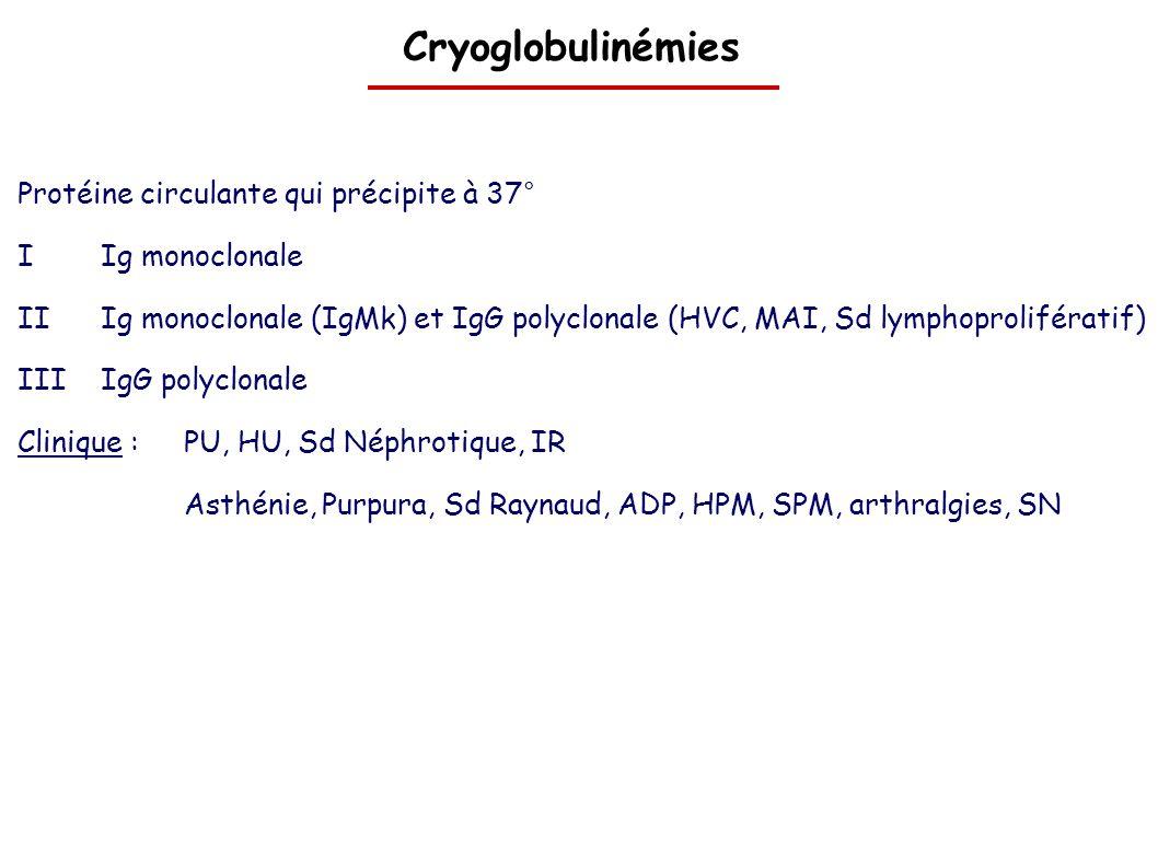 Cryoglobulinémies Protéine circulante qui précipite à 37°