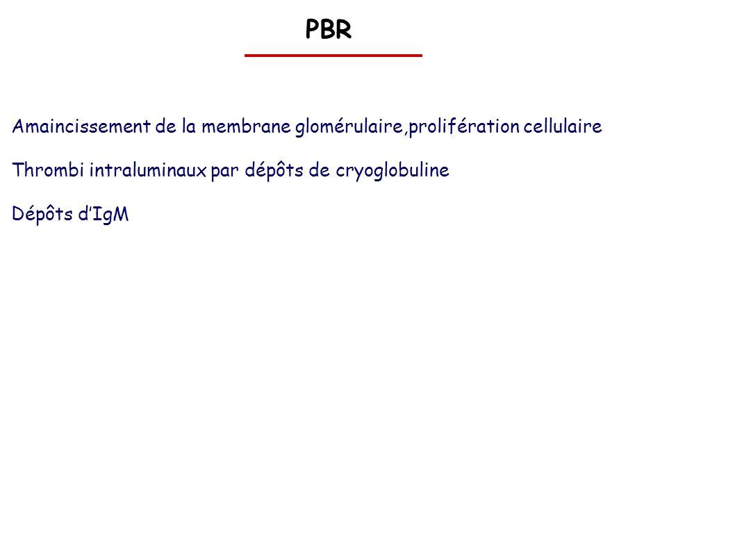 PBR Amaincissement de la membrane glomérulaire,prolifération cellulaire. Thrombi intraluminaux par dépôts de cryoglobuline.