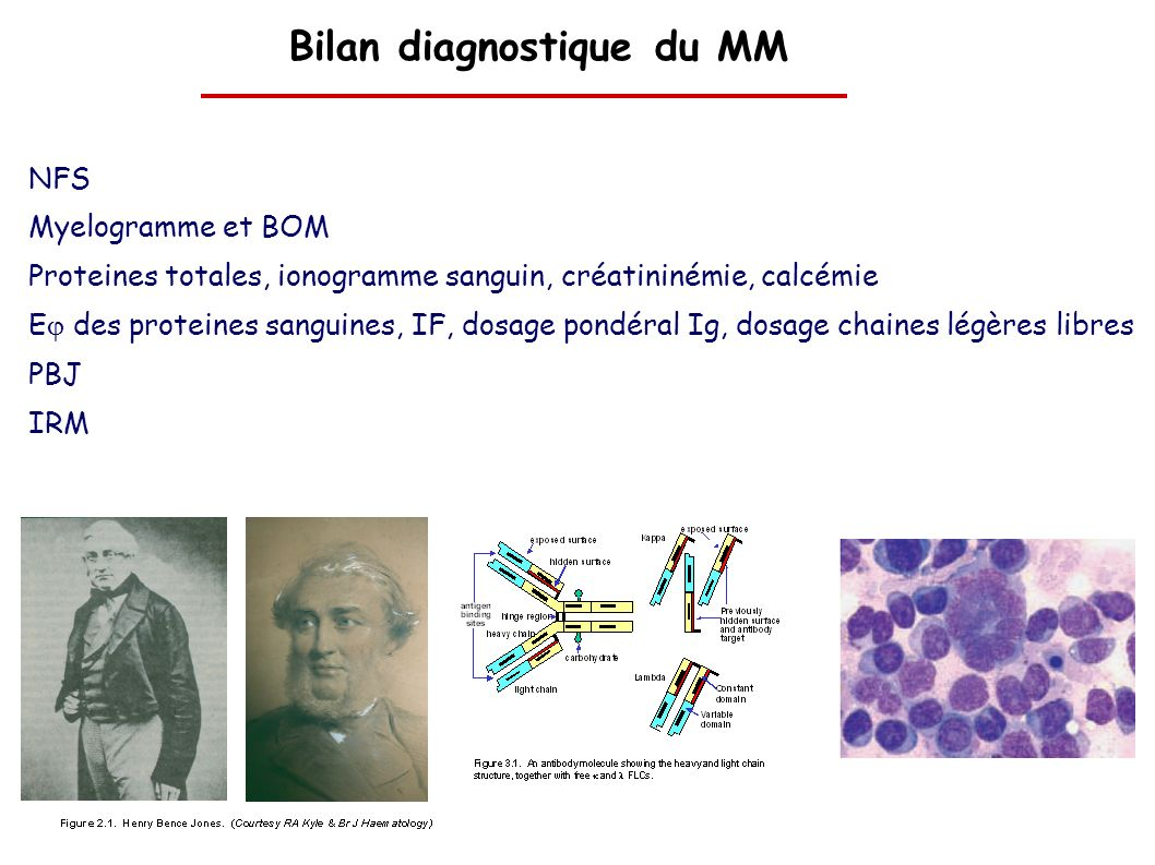 Bilan diagnostique du MM