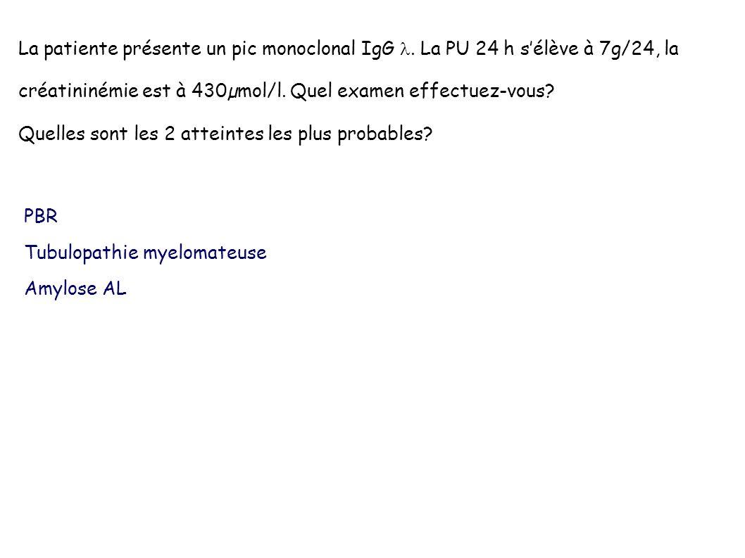 La patiente présente un pic monoclonal IgG 