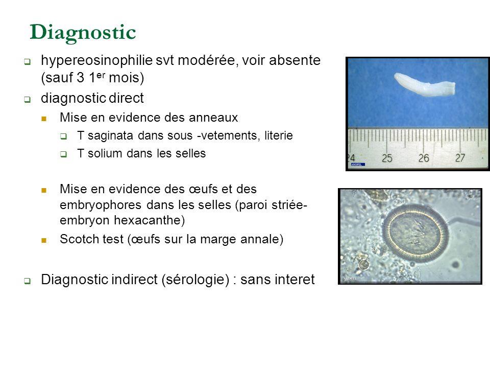 Diagnostic hypereosinophilie svt modérée, voir absente (sauf 3 1er mois) diagnostic direct. Mise en evidence des anneaux.
