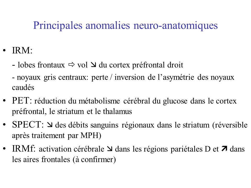 Principales anomalies neuro-anatomiques