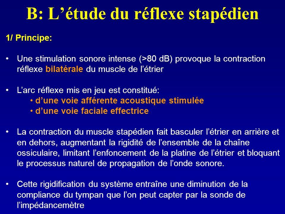 B: L'étude du réflexe stapédien