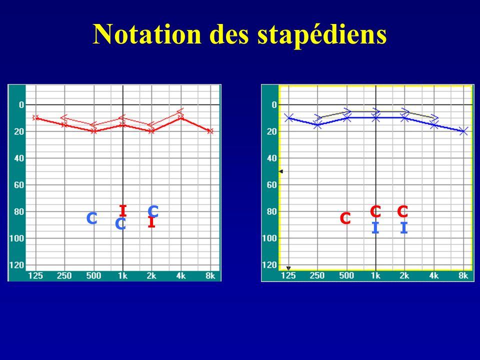 Notation des stapédiens