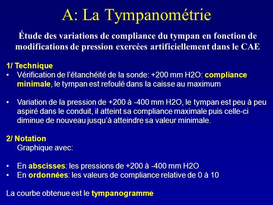 A: La Tympanométrie Étude des variations de compliance du tympan en fonction de modifications de pression exercées artificiellement dans le CAE.
