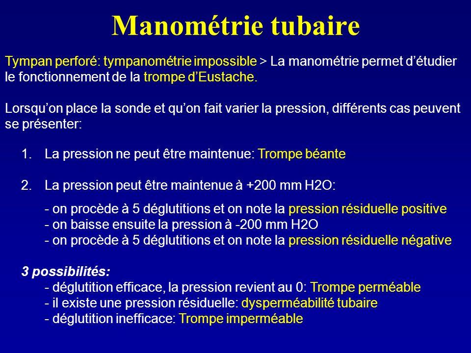 Manométrie tubaire Tympan perforé: tympanométrie impossible > La manométrie permet d'étudier le fonctionnement de la trompe d'Eustache.