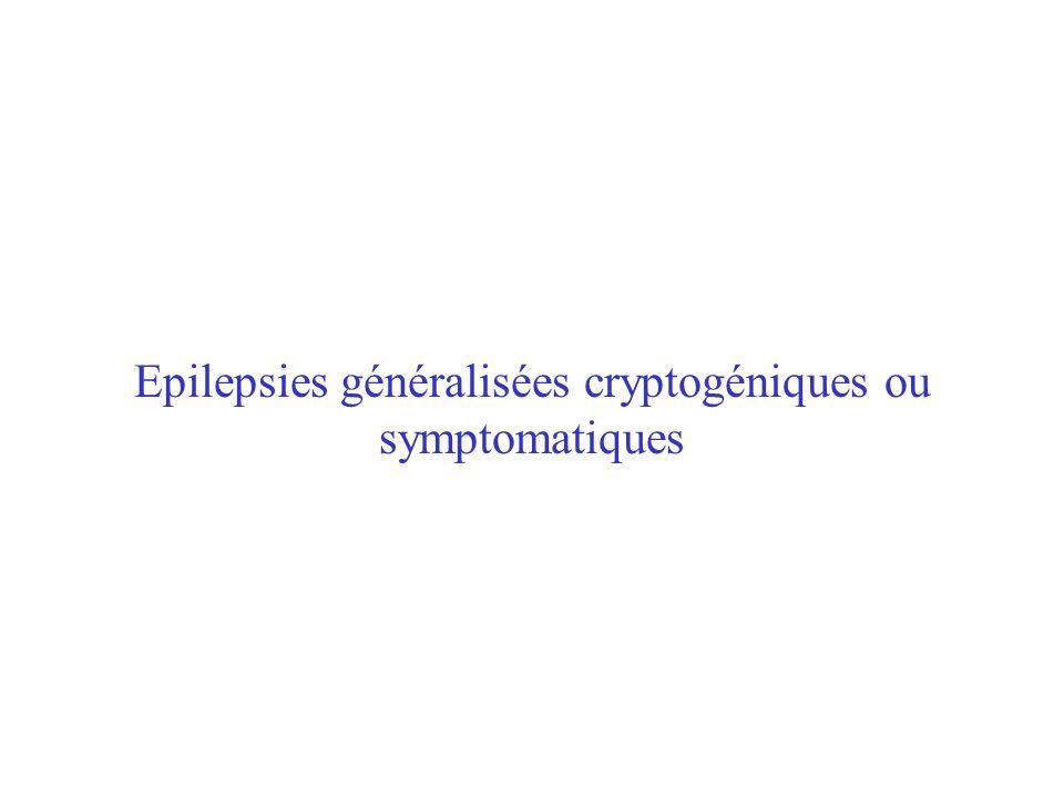 Epilepsies généralisées cryptogéniques ou symptomatiques
