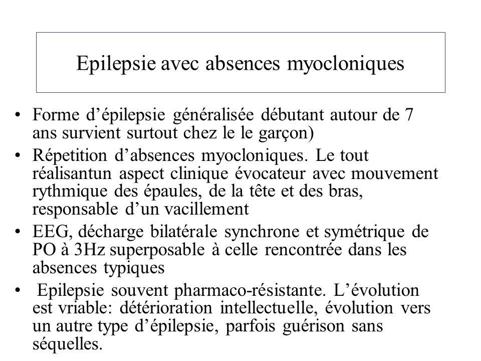 Epilepsie avec absences myocloniques