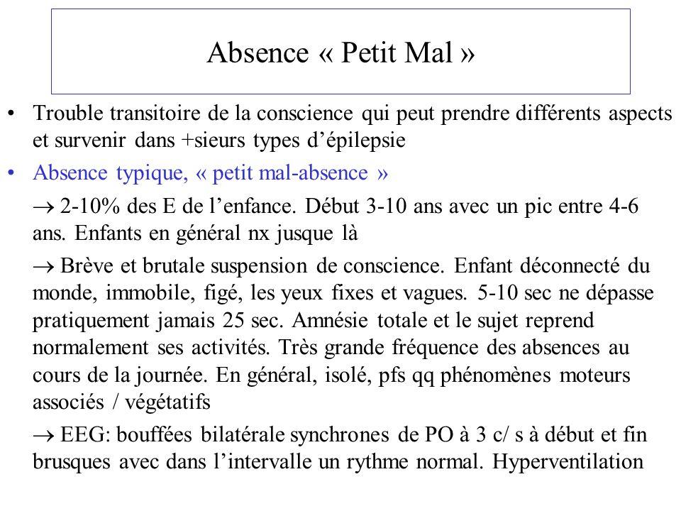 Absence « Petit Mal » Trouble transitoire de la conscience qui peut prendre différents aspects et survenir dans +sieurs types d'épilepsie.