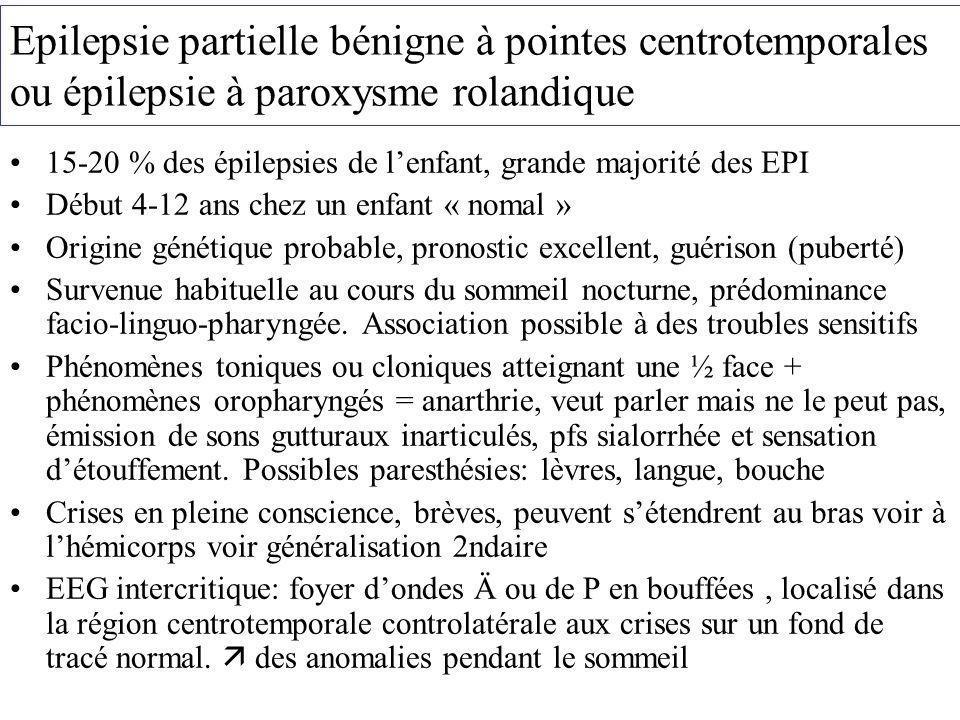 Epilepsie partielle bénigne à pointes centrotemporales ou épilepsie à paroxysme rolandique