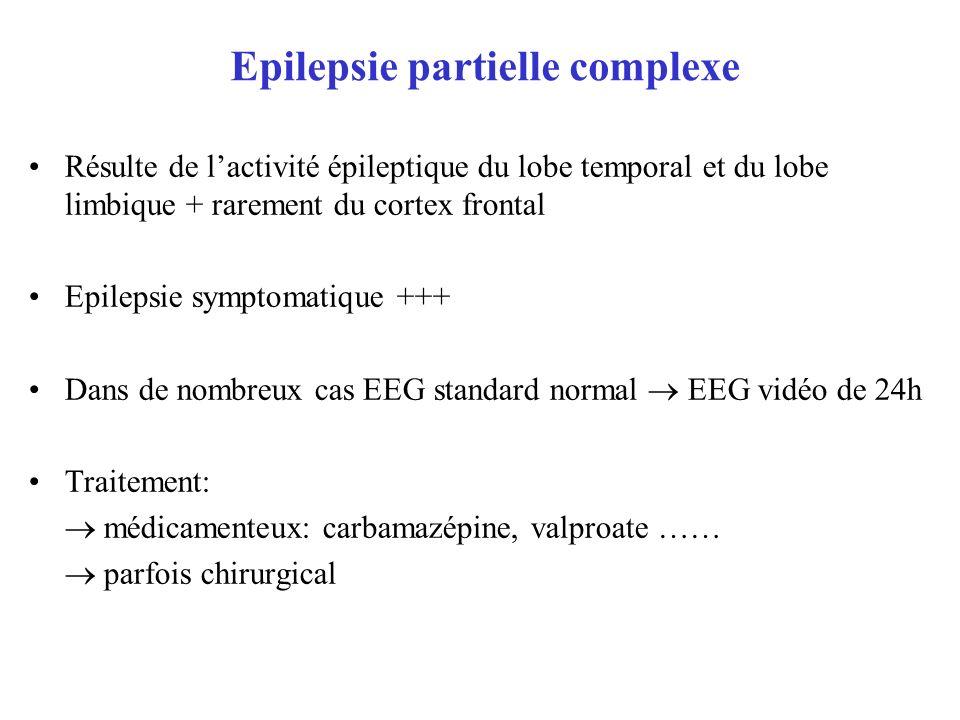 Epilepsie partielle complexe