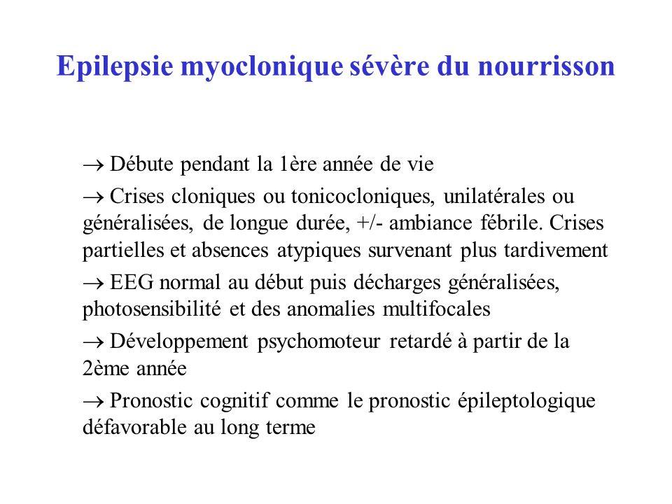 Epilepsie myoclonique sévère du nourrisson