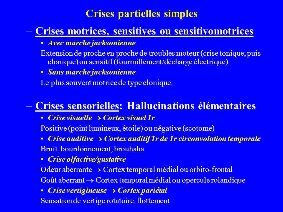 Crises partielles simples