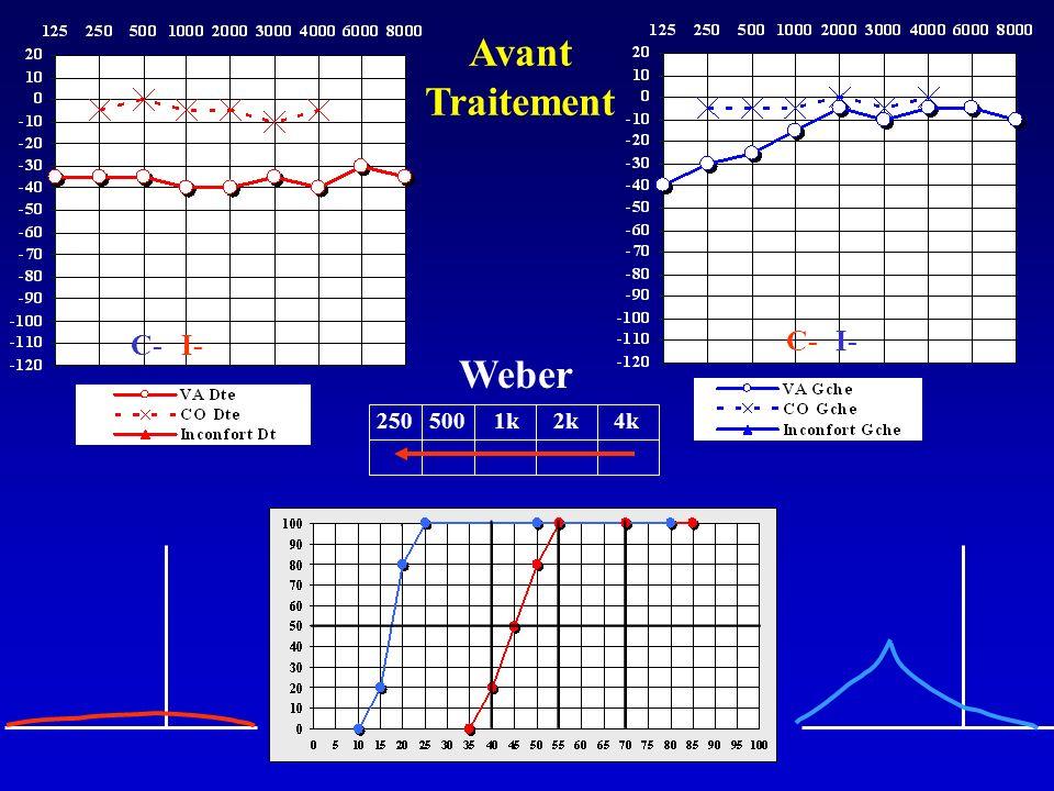 Avant Traitement C- I- C- I- Weber 250 500 1k 2k 4k