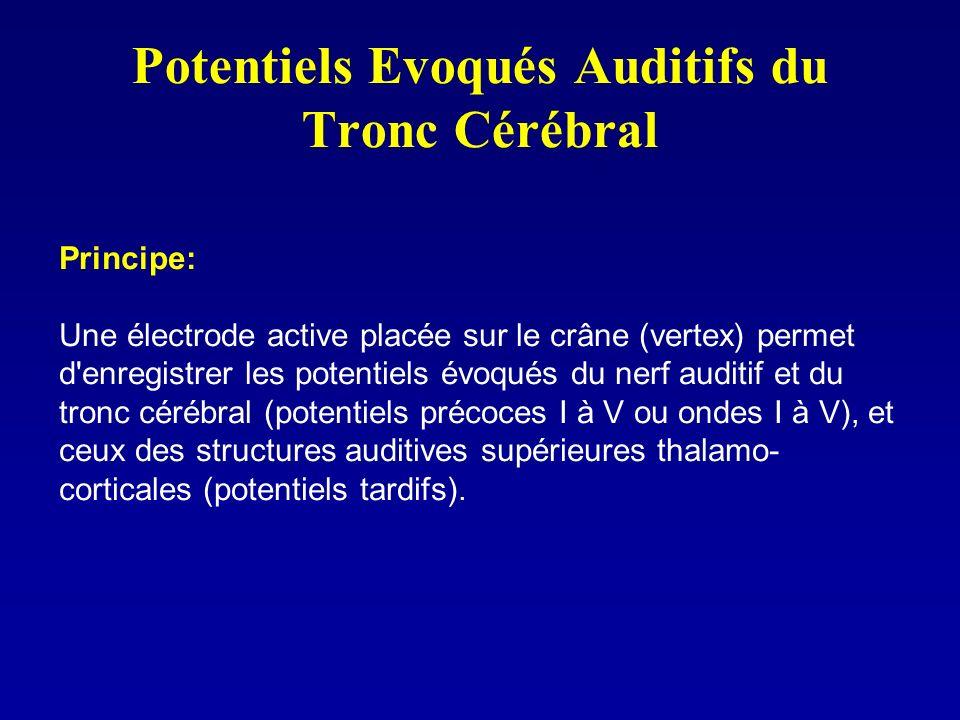 Potentiels Evoqués Auditifs du Tronc Cérébral