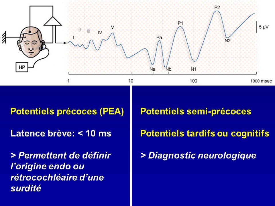 Potentiels précoces (PEA)