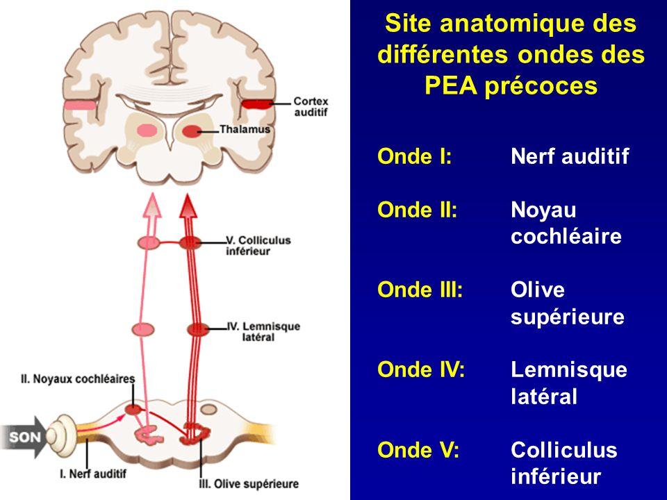 Site anatomique des différentes ondes des PEA précoces