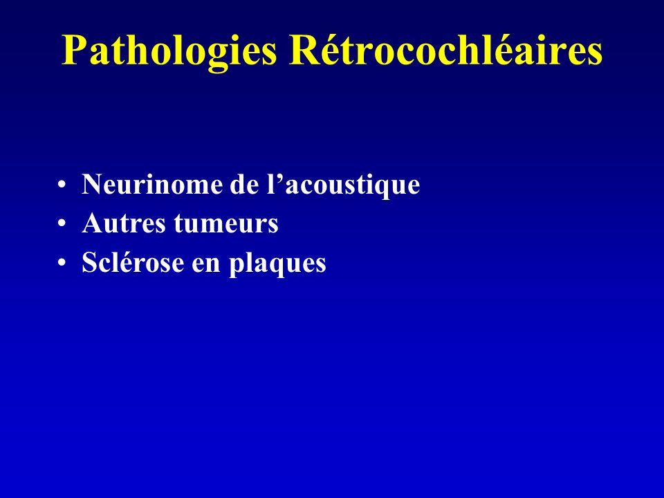 Pathologies Rétrocochléaires