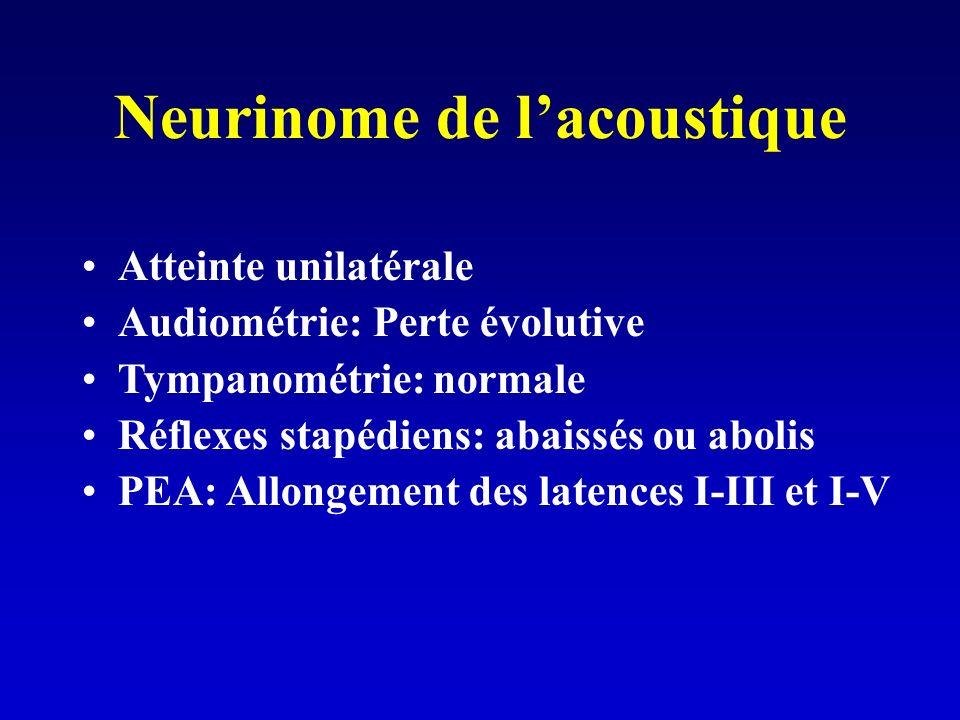 Neurinome de l'acoustique