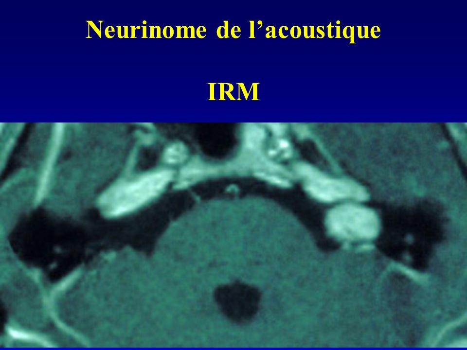 Neurinome de l'acoustique IRM