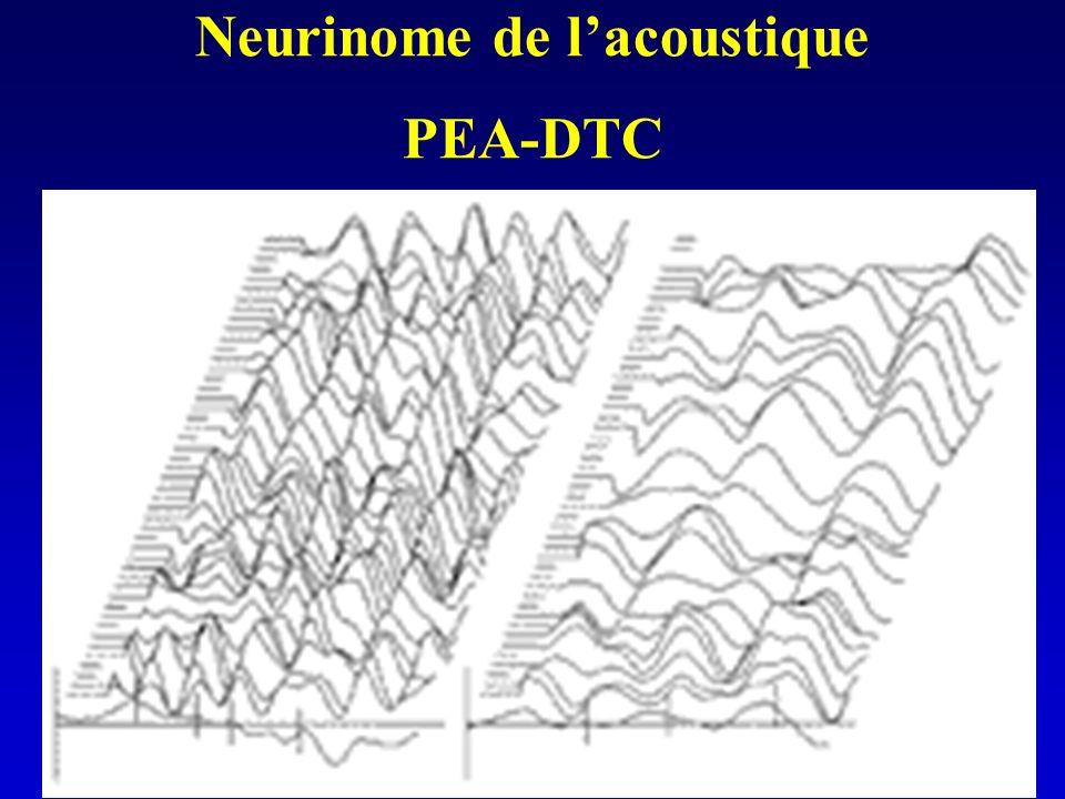 Neurinome de l'acoustique PEA-DTC