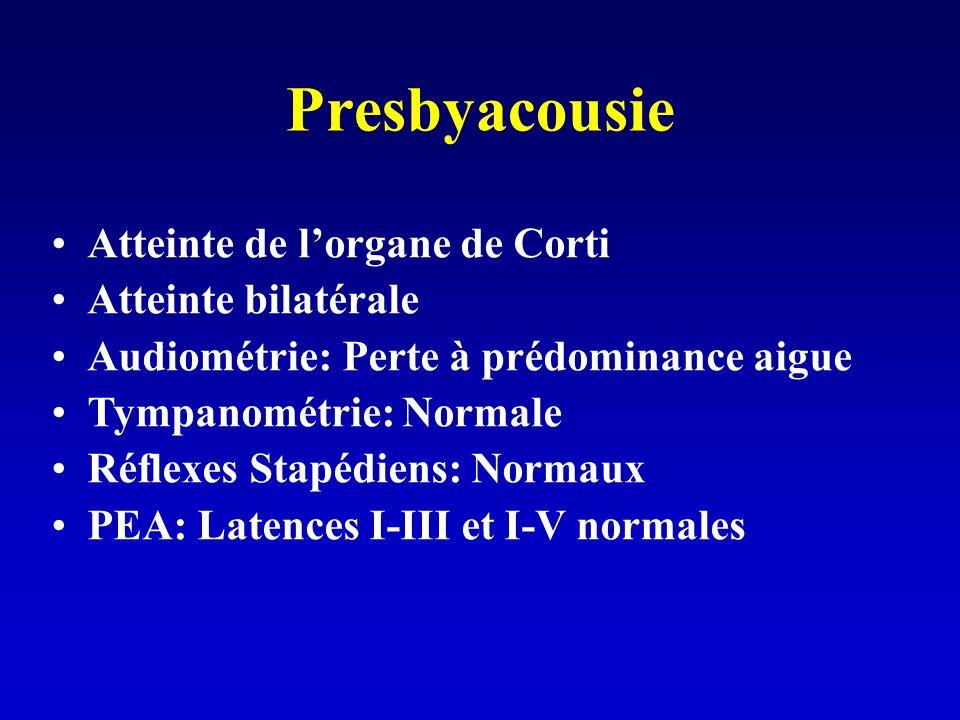 Presbyacousie Atteinte de l'organe de Corti Atteinte bilatérale