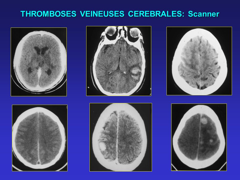 THROMBOSES VEINEUSES CEREBRALES: Scanner