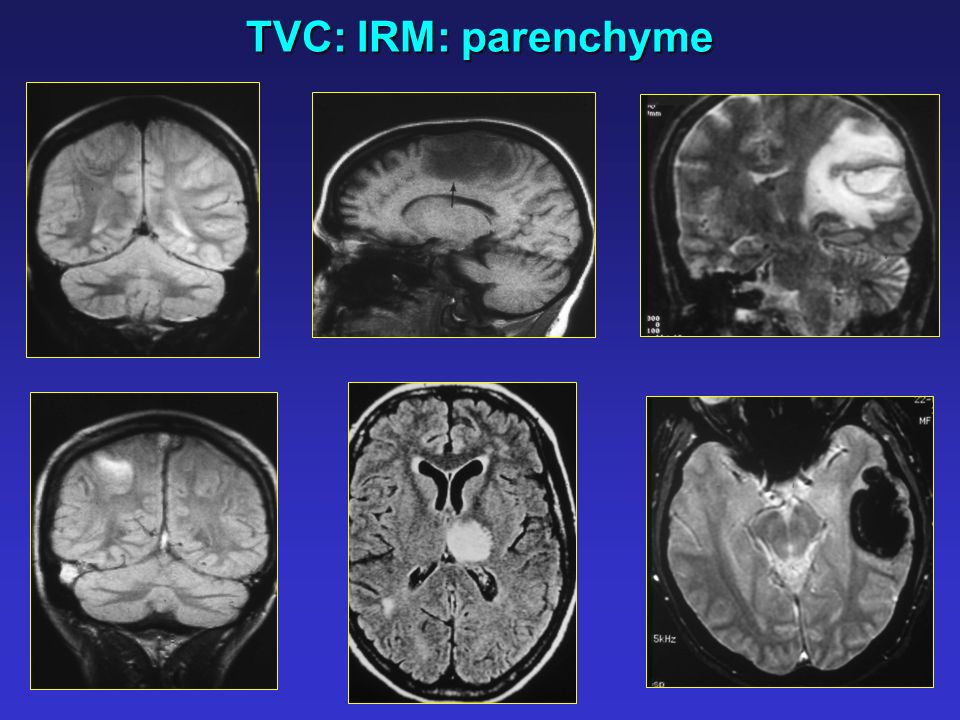 TVC: IRM: parenchyme