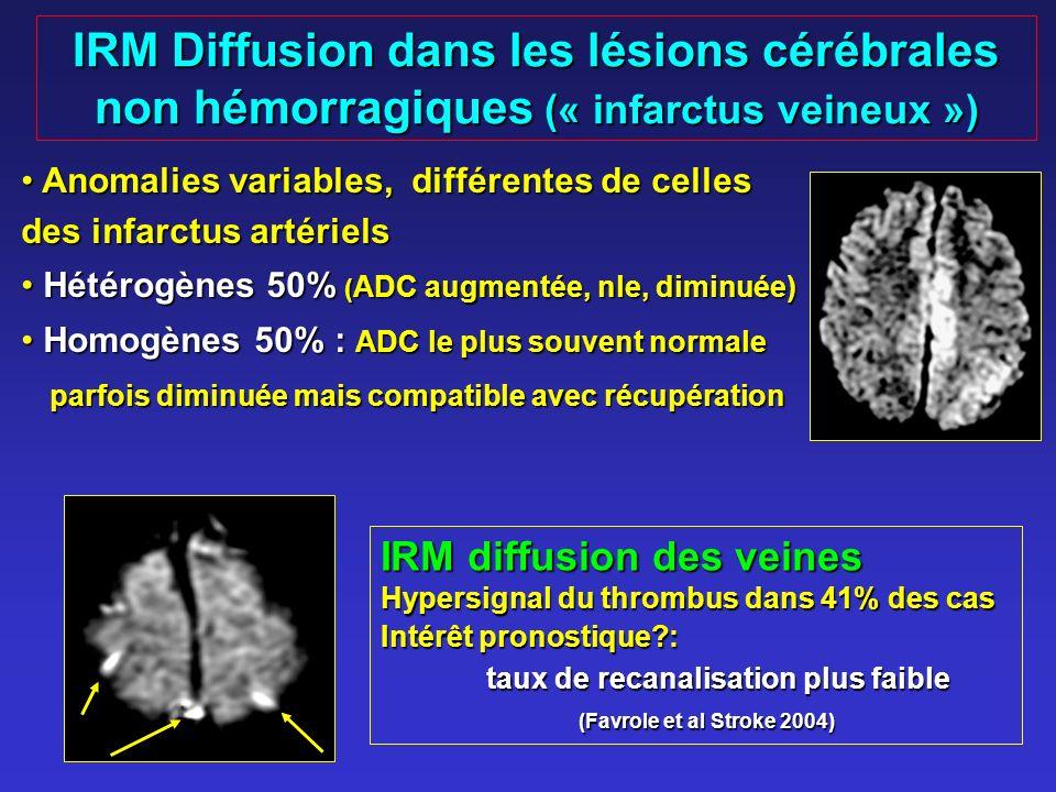 IRM Diffusion dans les lésions cérébrales non hémorragiques (« infarctus veineux »)