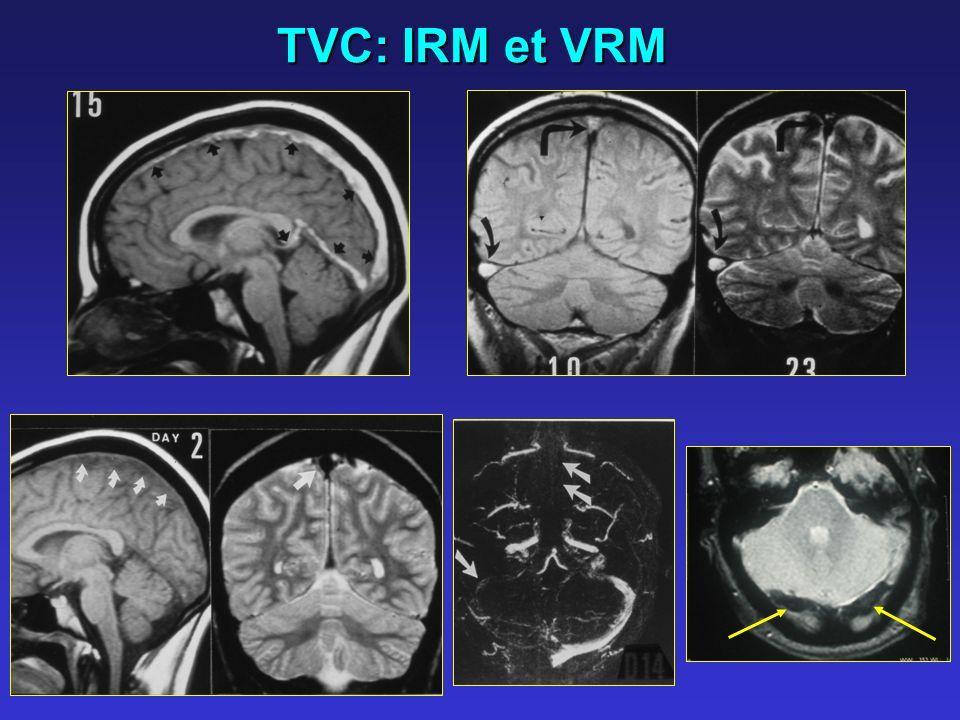 TVC: IRM et VRM