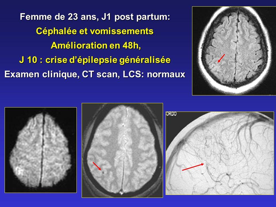 Femme de 23 ans, J1 post partum: Céphalée et vomissements